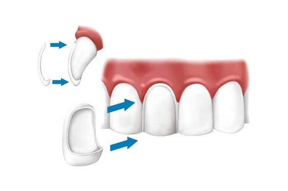 cosmesi-denti-albania.jpg