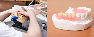 protesi dentali in Albania
