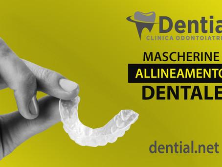 Mascherine dentali invisibili
