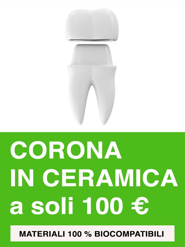le nostre corone in metallo ceramica sono costruite con cromo cobalto e sono assolutamente prive di nichel