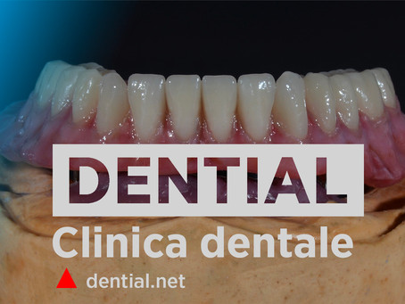 Clinica dentale in Albania