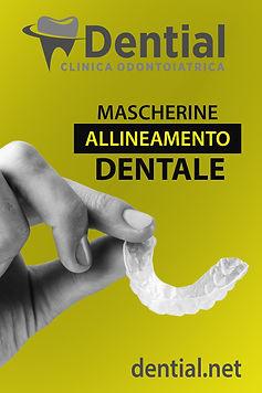 allineamento-denti-invisibile.jpg