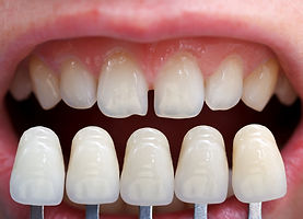 Dental cosmetic treatments