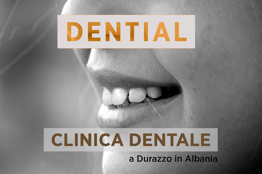 Medici Dentisti in Albania Durazzo