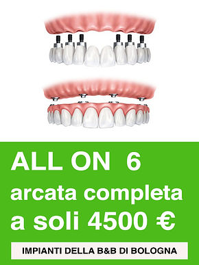 Arcata Completa All on 6