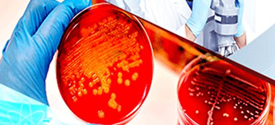 microbilogy,chromagar,technology,karusindo,karuniajasindo,indonesia,kimia