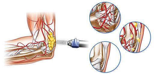 swt-stimulation-of-collagen-rgb.jpg