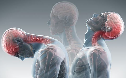 Whiplash-Chiropractic-Treatment-in-Mora
