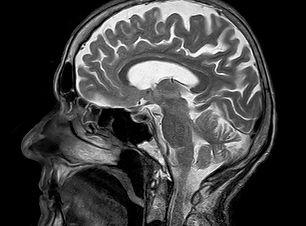 MRI HEAD.jpg