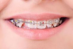 Ortodoncia-infantil.-Cuando-empezar.jpg