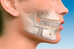 cirugia-maxilofacial-cabecera.jpg