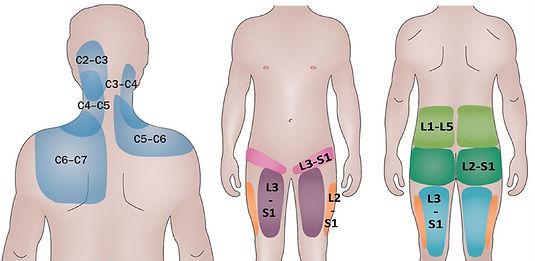фасеточныйсиндром2.jpg