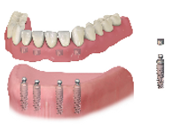 FAVPNG_dental-implant-dentistry-dentures