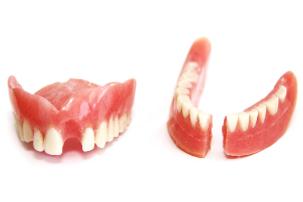 gebroken kunstgebit tandtechniek