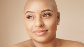 'I wasn't going to let Alopecia control how I felt about myself anymore'