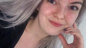 'I never wanted to be defined by my psoriasis'