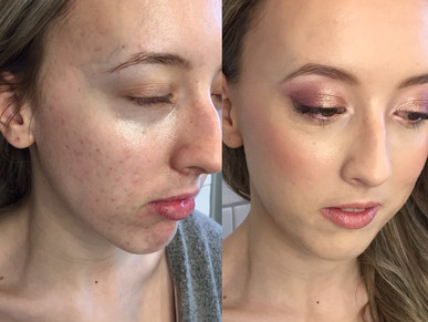 How to achieve a Natural looking foundation when you have acne?