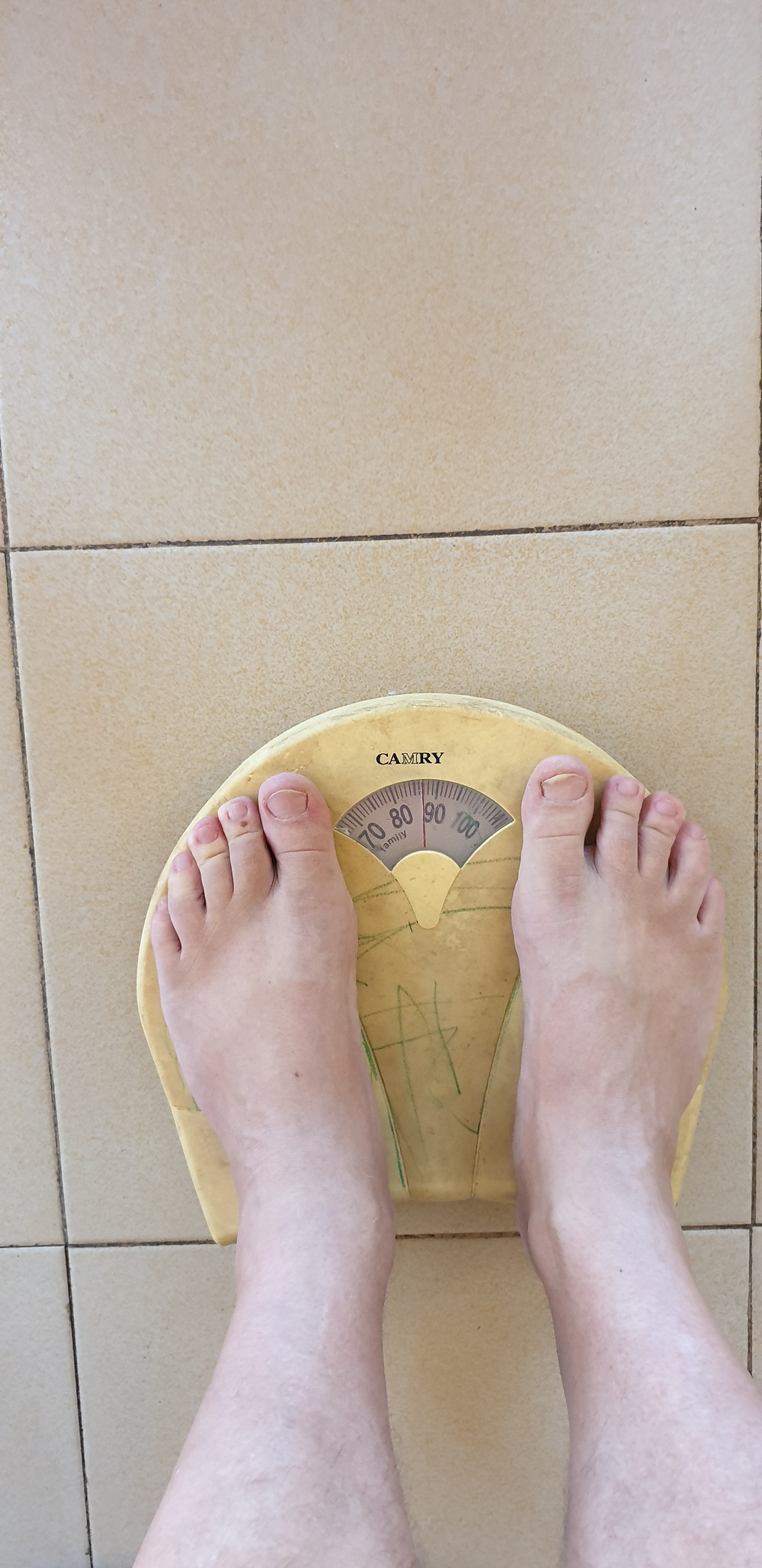 My father [ 79 years ] now weighs 116 kg., I want to avoid that.