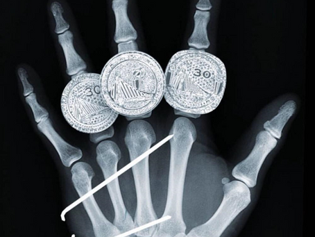 Stephen Curry, Hand injuries, and the Covid-19 Crisis