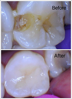 Before & After Filling