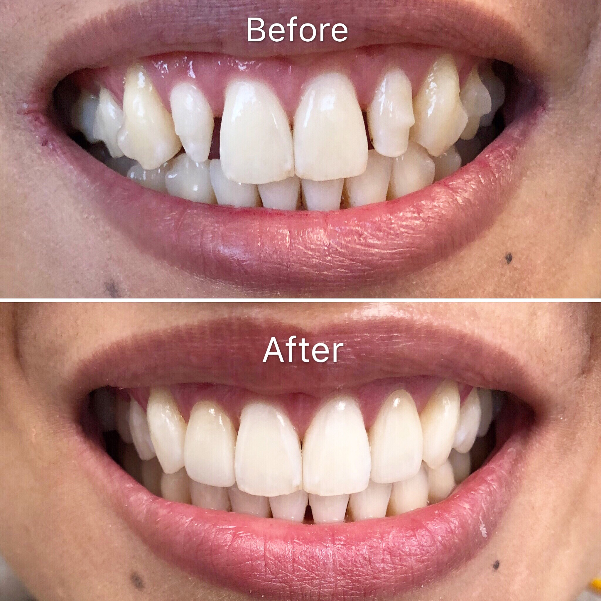 Before/After Veneers