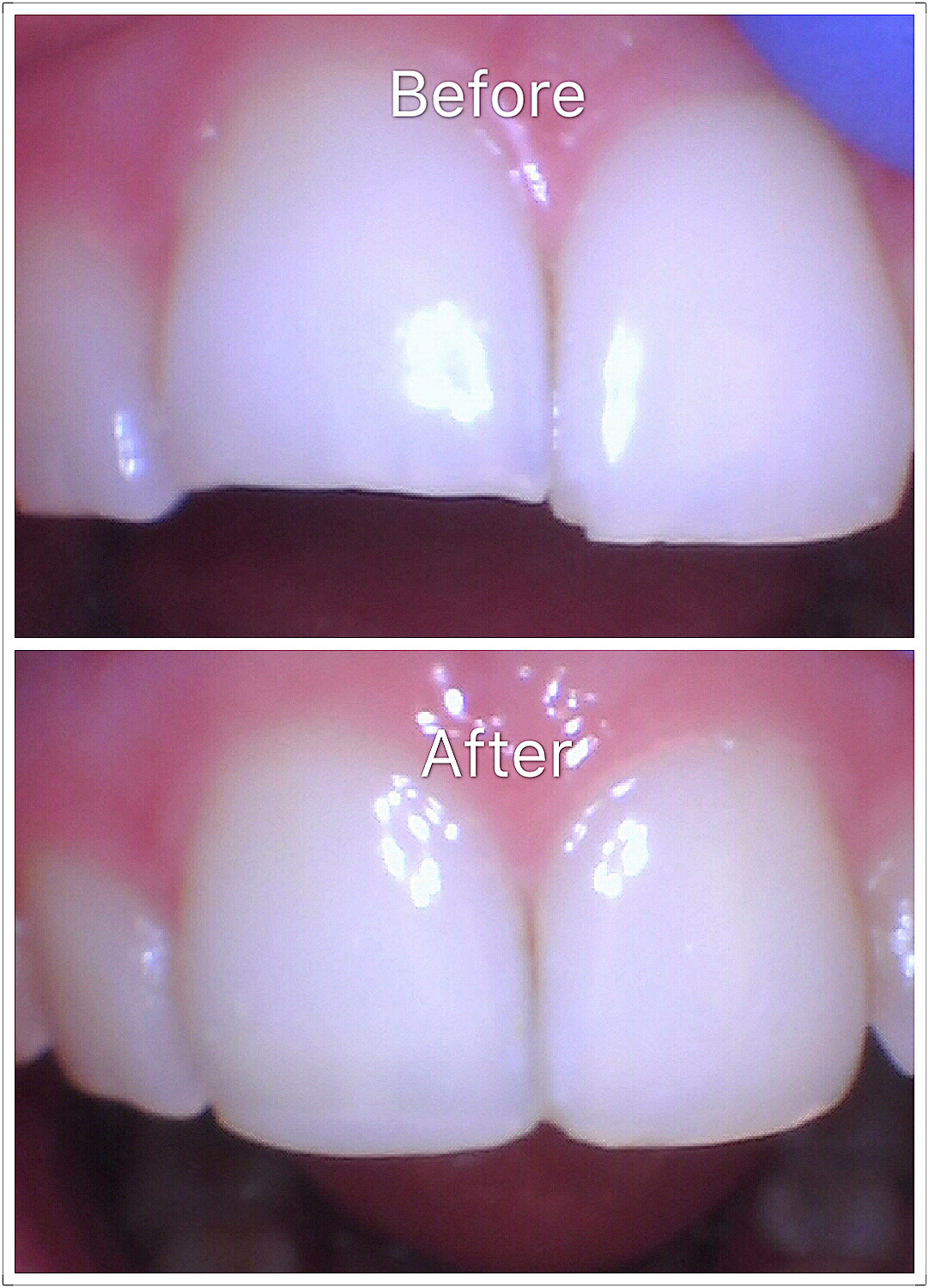 Veneers (cosmetic dental)
