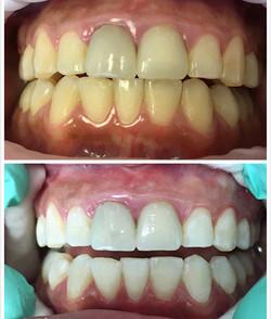 Laser Whitening (cosmetic dental)
