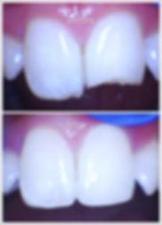Cosmetic Dentist in Alexandria, Veneers, Alexandria Cosmetic dentist, non metal crown, holistic and gentle alexandria dentist