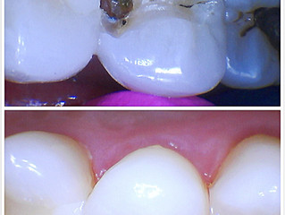 What is a cavity? What can I do to treat it?