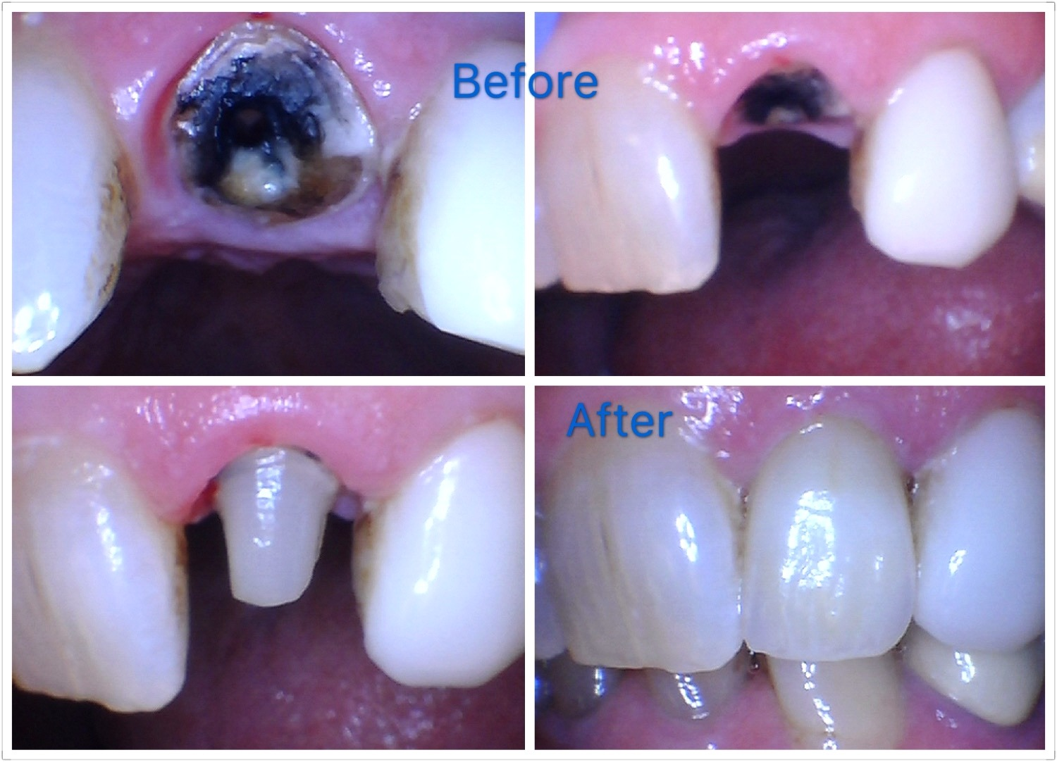 Before & After Crown treatment