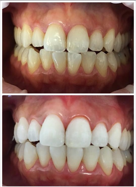 Laser Whitening (cosmetic dental)
