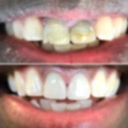 KAdedokun Before-After.JPG