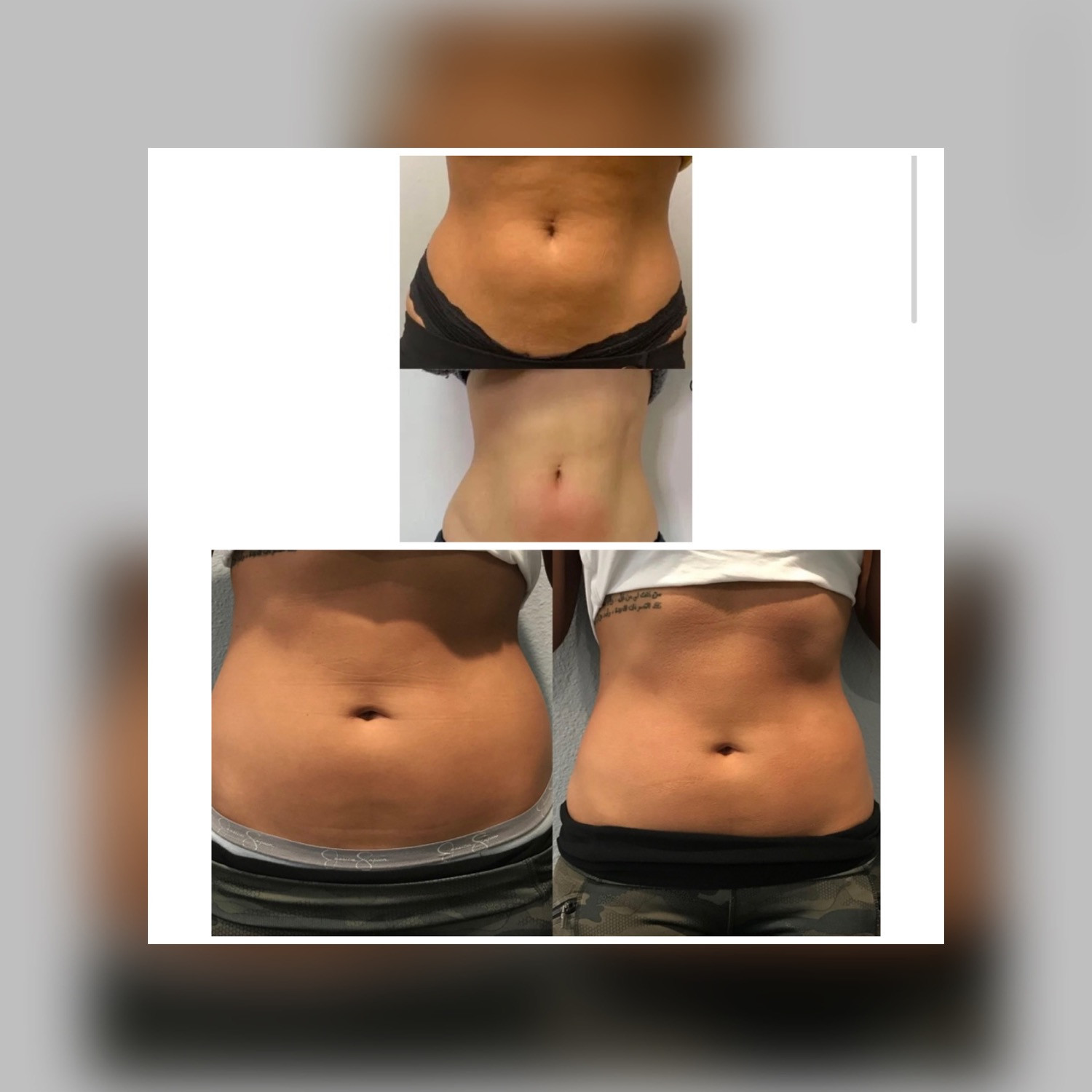 10 Sessions of CryoSlimming