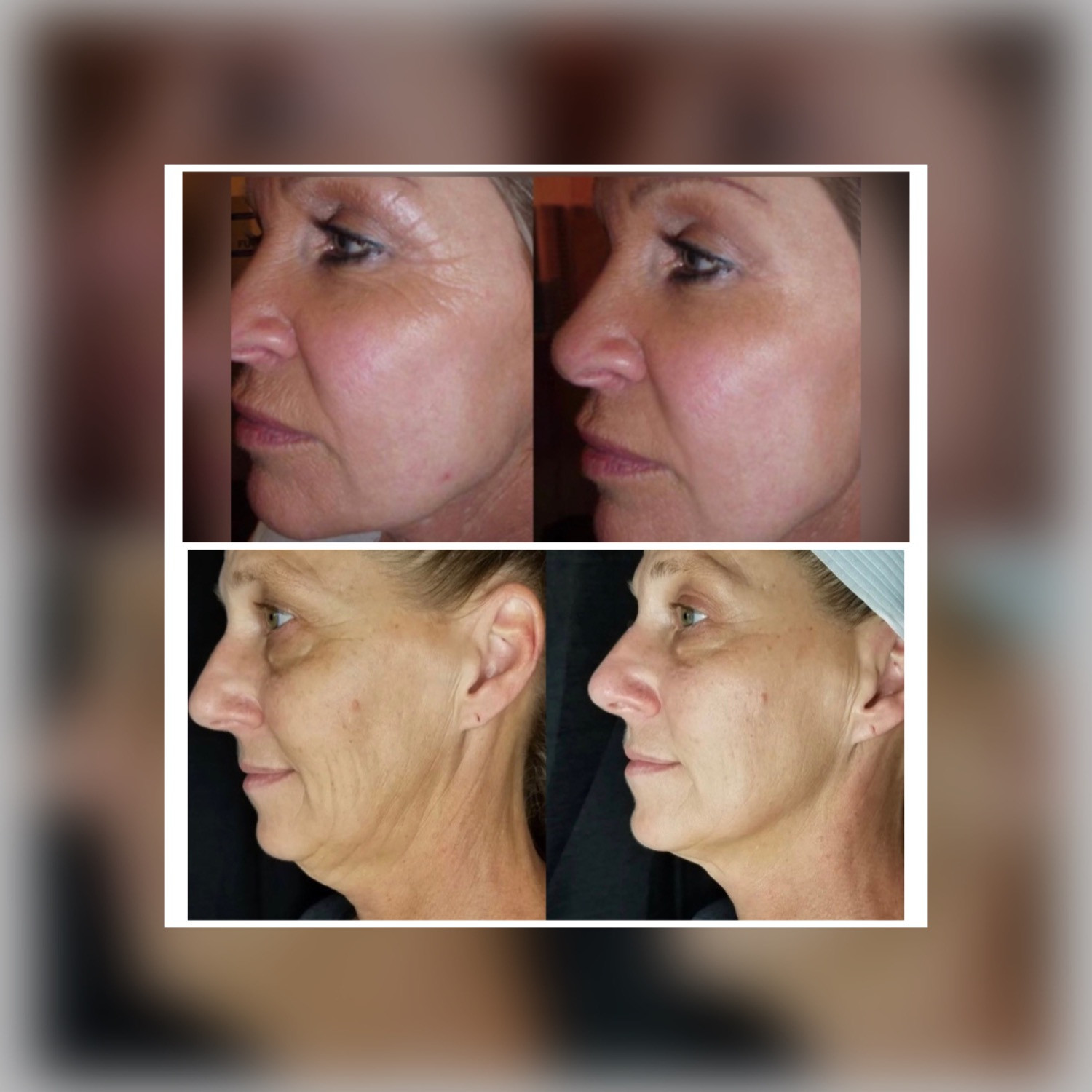 5 Sessions of CryoFacial
