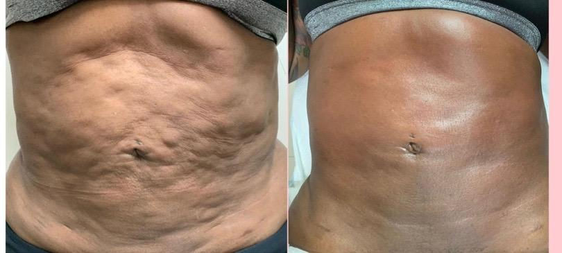 Treatment For Scar Tissue & Lipo Lumps