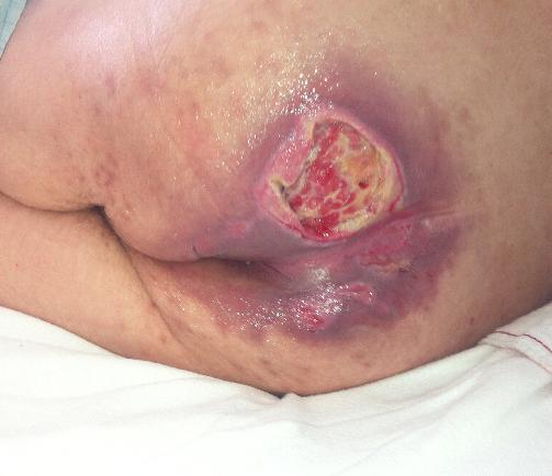 Sacral Pressure Ulcer