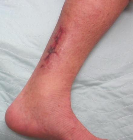 Wound healed