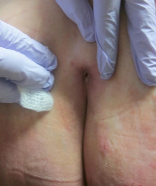 sacral wound