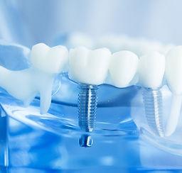 Dentist in Hunsville AL