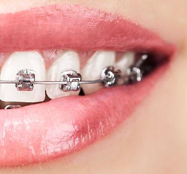 traditional-braces-davie-florida.jpg