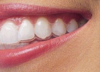 apparecchio-denti-e1482234475406.jpg