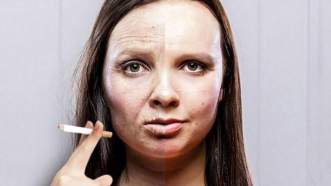 Cigarro: Inimigo da saúde e beleza