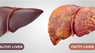Enfermedad del Hígado Graso