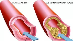 El Colesterol y los efectos de la Aterosclerosis