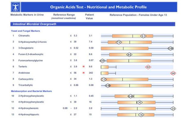 organic-acids-test.jpg
