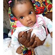 Petite Emmanuelle Likibi_Spina Bifida _C