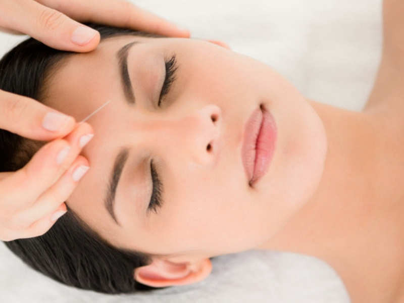 Reduce Anxiety Symptoms With Acupuncture | Total Mental Wellness