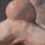 Thumbnail: Santos Samuel.  TUMOR IN THE REGIO PATELLARIS