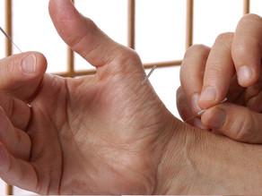 Acupuntura para combater o Parkinson