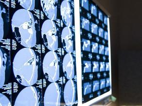 O futuro da Estimulação Cerebral Profunda – Dr. Alfonso Fasano